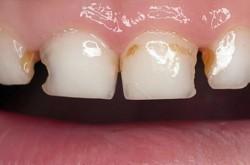 Ранний кариес у детей молочных и кореных зубов. Виды кариеса